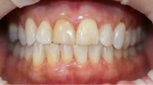 998_Marie_Carone_Implant_Veneer_smile_makeover