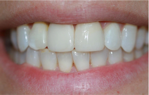 Someone with a straight, white smile that had a dental implant procedure recently